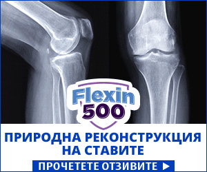 Flexin500 - стави